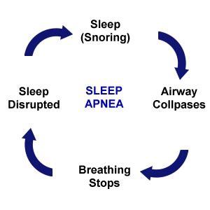 Sleep essay introduction